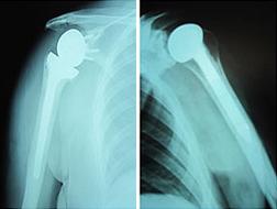 Изображение - Институт плечевого сустава endoprotez5